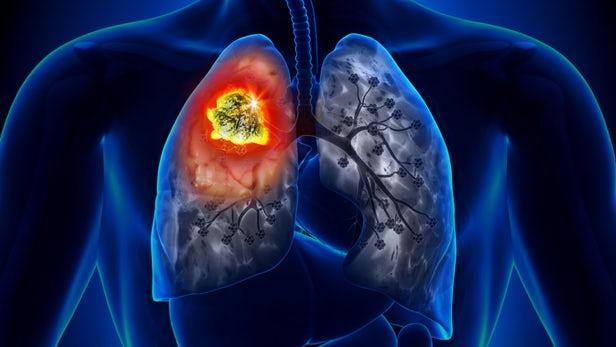 फेफड़े का कैंसर : प्रदूषण एक स्पष्ट और वर्तमान खतरा है 16