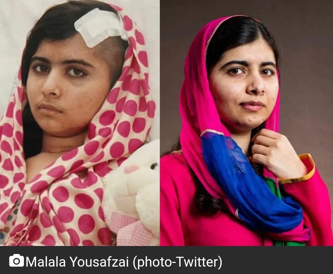 तालिबान से नुकसान पर बोली मलाला; अभी भी सिर्फ़ एक गोली से उबर रहे हैं 2